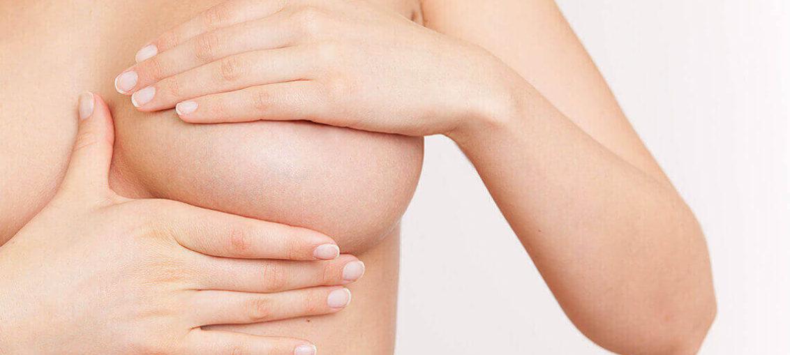 Augmentation mammaire par le Dr Alliez en Corse